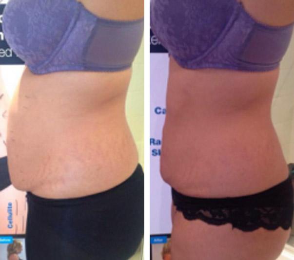 3D Bespoke Fat Reduction (HIFU) Body - Marsh Medical Skin