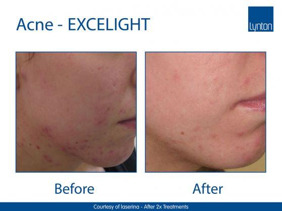 EXCELIGHT-acne