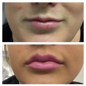 Lip-enhancement2-300x300