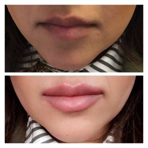 Lip-enhancement4jpg