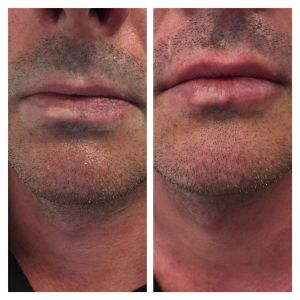 Lip-enhancement5jpg
