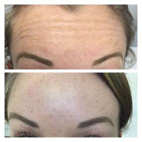 BOTOX - Forehead Lines
