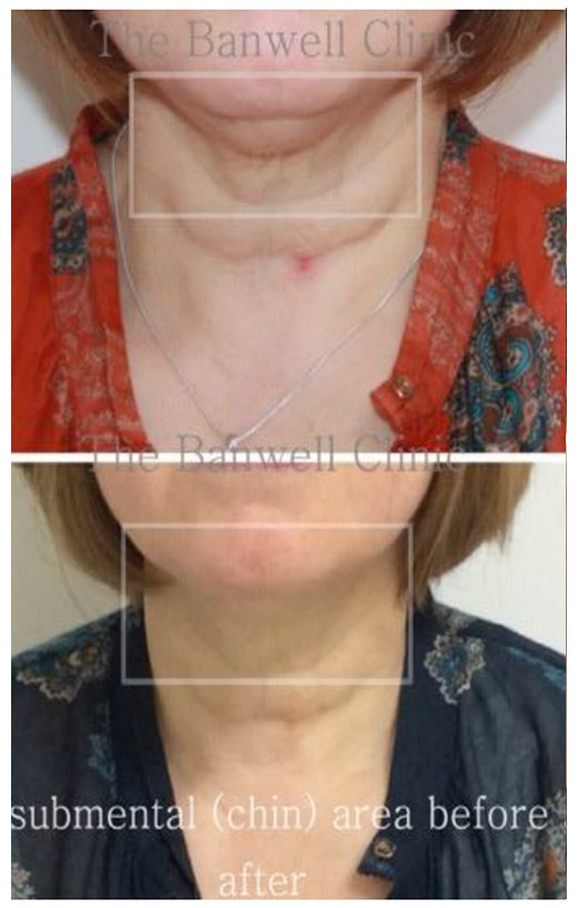 3D HIFI Ultrasound Facelift - Marsh Medical Skin Clinic
