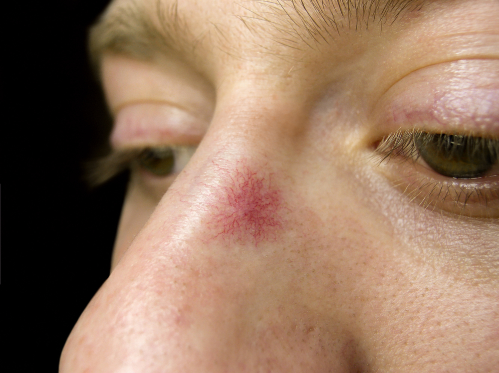 Spider hemangioma on the skin of the nose